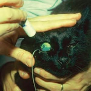 ophth-glaucoma-pic